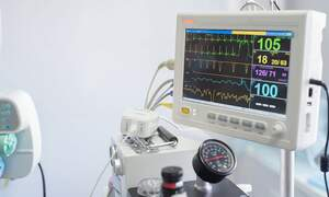 German research team develop a heart radar system